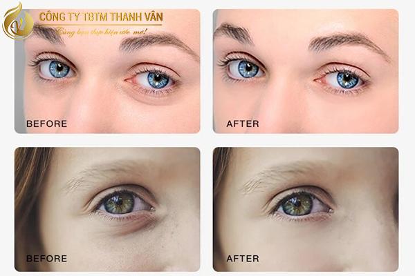 doi-mat-tuoi-tre-tran-day-suc-song-sau-lam-dep-voi-bb-eyes